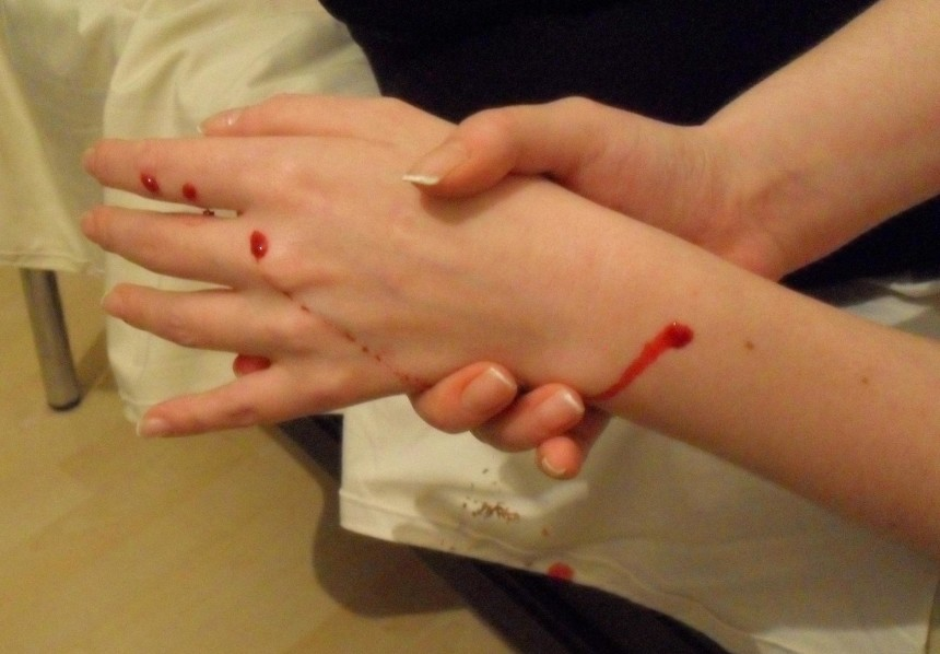 zraněná ruka, morguefile.com